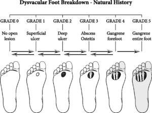 evoluzione del piede diabetico