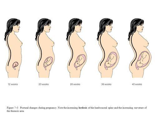 dolore schiena donne