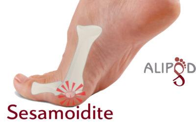 Dolore ai piedi causato dalla sesamoidite, infiammazione dei sasamoidi, come affrontare il problema.