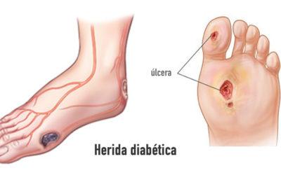 Diabete e piede diabetico, il ruolo del podologo.