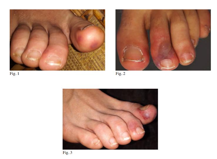lesioni ai piedi sintomi sospetti covid-19